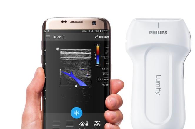 You are currently viewing Ein Ultraschallgerät der Extraklasse